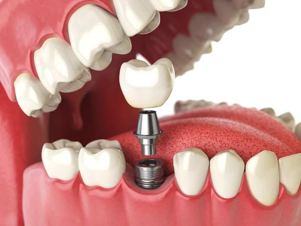 Why Dental Implants