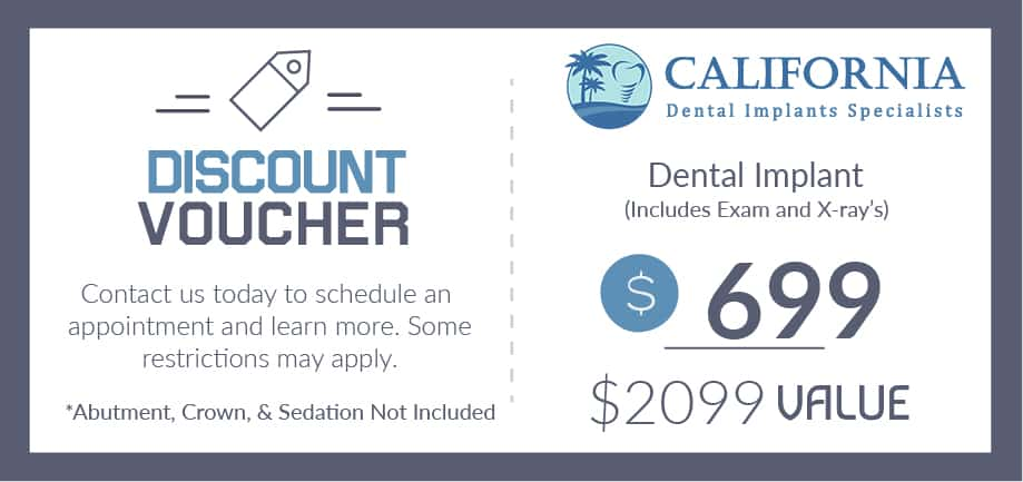 Dental Implant Coupon